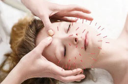 acupuncture-face